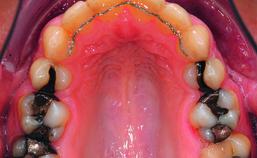Intraorale opname maxilla einde orthodontische behandeling