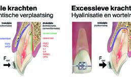 Orthodontische verplaatsing, hyalinisatie en wortelresorptie