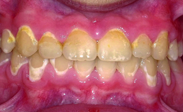 Wittevleklaesies na verwijdering vaste orthodontische apparatuur