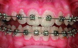 Plaque gingivaal van de bracket
