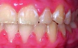 Postorthodontische wittevleklaesies