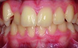 Intraoraal beeld voor de orthodontische behandeling