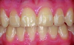 Meerdere postorthodontische wittevleklaesies