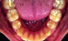 Ondertandboog na actieve orthodontische behandeling