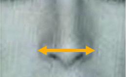 Breedtematen aangezicht en cupidoboog 2000-2020