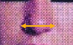 Breedtematen aangezicht en cupidoboog  2005