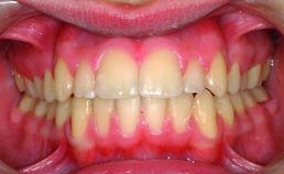 Frontaal aanzicht direct na actieve orthodontische behandeling