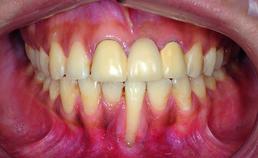 X-effect 10 jaar na actieve orthodontische behandeling