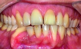 Substantiële tandstandverandering