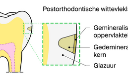 Schematische weergave postorthodontische wittevleklaesie