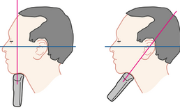 Positie handstuk voor ultrasonografisch van tong