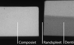 T-WIM microradiografische opname composietrestauratie