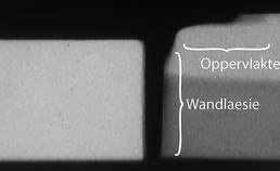 Microradiografische opname, laesies zichtbaar