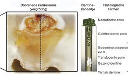 Diagram gecaviteerde carieuze dentinelaesie