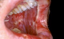 Orale mucositis