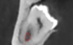 Coronale coupe toont canalis mandibularis