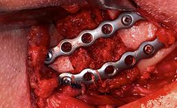 Reconstructie mandibulae met osteosyntheseplaten en autoloog bot