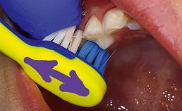 NRCT: dwars op tandboog poetsen