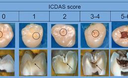 De ICDAS-score