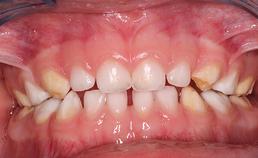 HSPM met weefselverlies en gevoeligheid 3