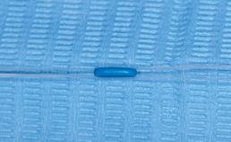 Stap 2 plaatsing separatie-elastiekje