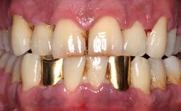 acute necrotiserende ulceratieve gingivitus/parodontitis