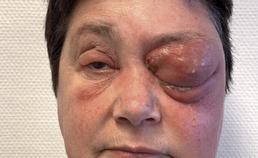 50-jarige vrouw met periorbitale zwelling en proptosis  (a)