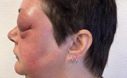 50-jarige vrouw met periorbitale zwelling en proptosis  (b)