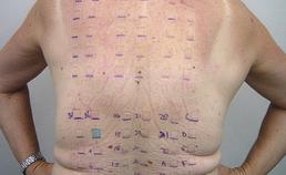 Allergieplaktest (EAO)
