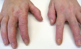 Handeczeem door contactirritatie