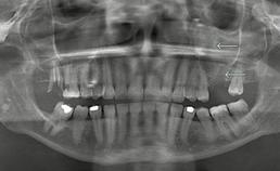 PAN van patiënten met een dentogene infectie