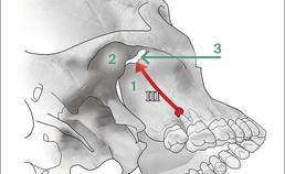 Verspreidingsroutes dentogene infectie 2 en 3