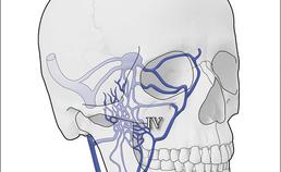 Verspreidingsroute dentogene infectie 4