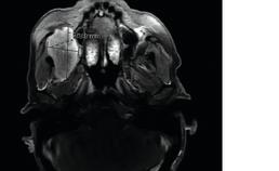 MRI met transversaal aanzicht