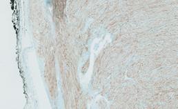 Laesionale cellen kleuren positief voor S100
