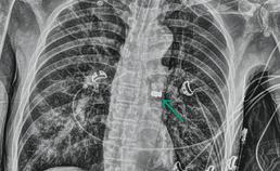 X-thorax: kroon met pontic zichtbaar in hoofdbronchus