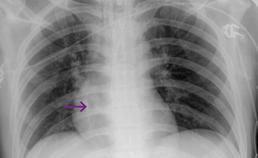 geaspireerd gebitselement op röntgenbeeld