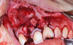 deglovement-letsel en verbrijzeling processus alveolaris