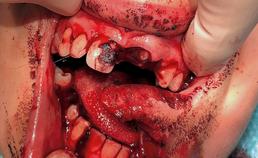 intraorale foto na repositie gebitselement