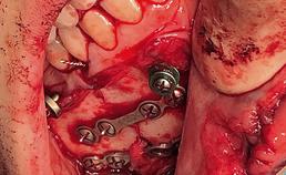 status na repositie en interne fixatie mandibulafractuur