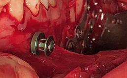 repositie en interne fixatie meervoudige mandibulafractuur