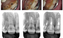 Endodontische behandeling getraumatiseerde gebitselementen