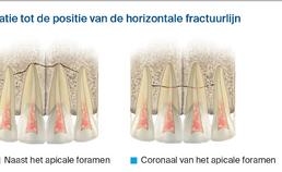 Effect van niveau processus alveolarisfractuur op pulpanecrose