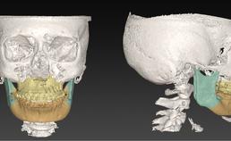 Digitale planning voor bimaxillaire osteotomie