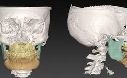 Digitale planning na bimaxillaire osteotomie