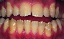 Open beet na orthodontische behandeling