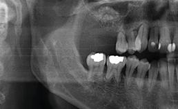 Röntgenopname na sinuslift
