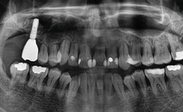 Na plaatsing implantaat geen progressie resorptie
