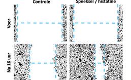 Histatine versnelt wondheling aantoonbaar
