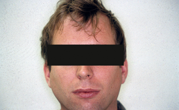 Zwelling van beide gl. parotidea bij patiënt